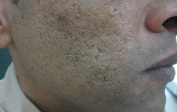 Enlarged Pores After 3 Treatments