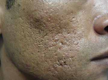 Enlarged Pores Before Treatment